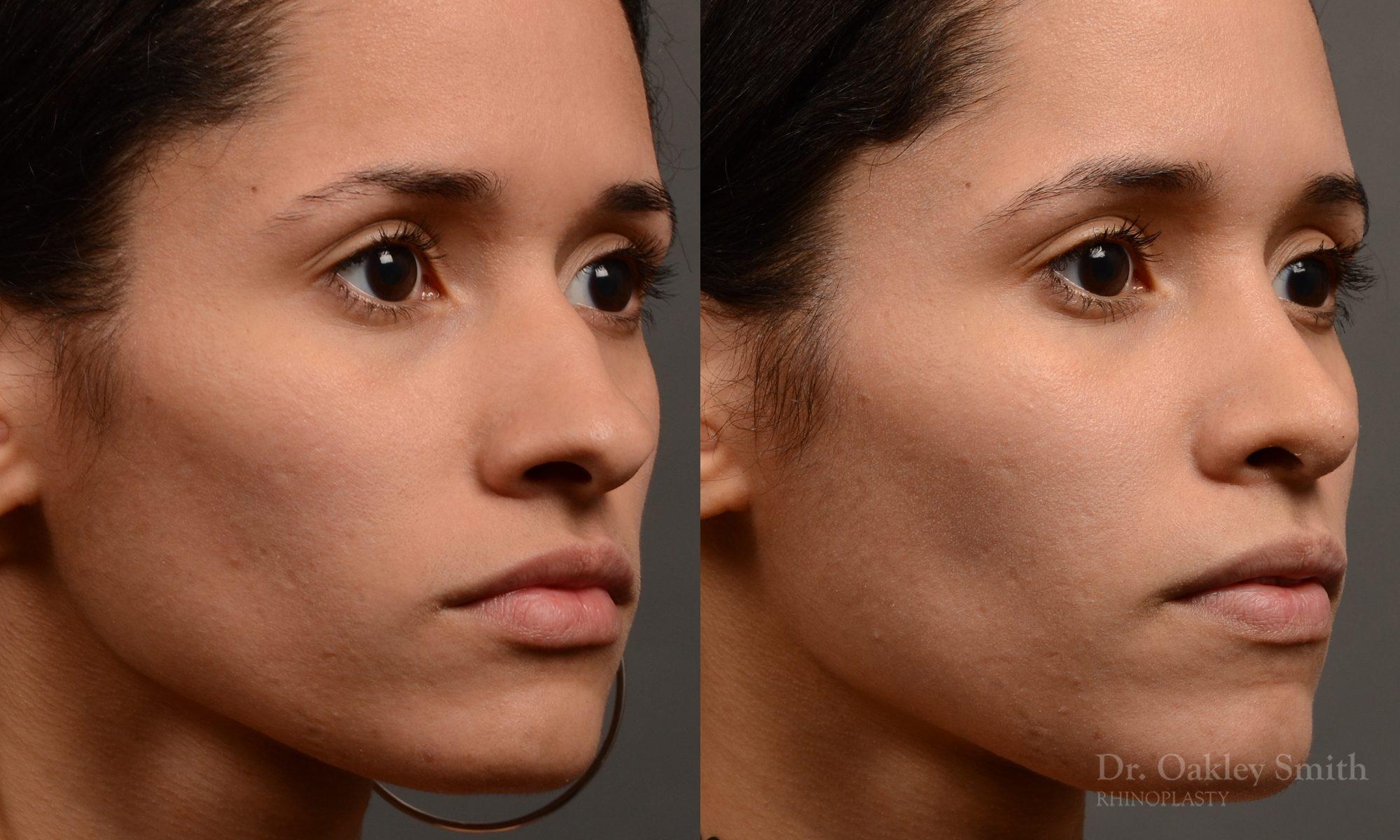 female rhinoplasty hump reduction