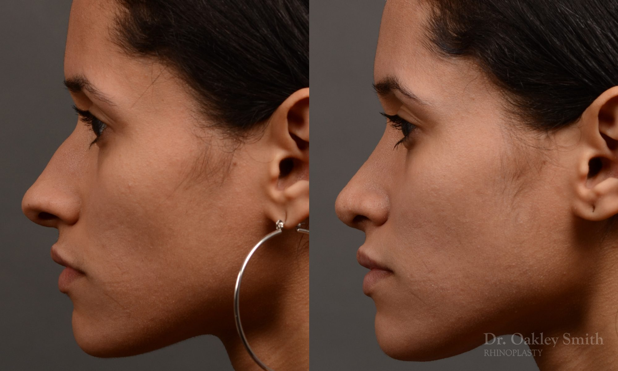female rhinoplasty hump reduction