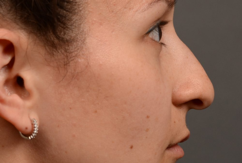 Rhinoplasty Before and After Case 332