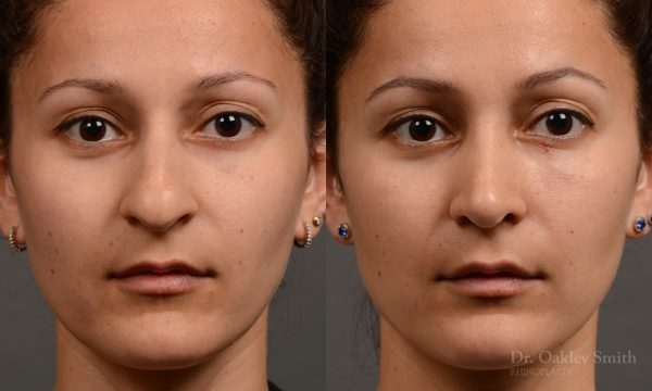 This young woman wanted her hump removed and felt her nose was too large for her face and her nasal tip to heavy.