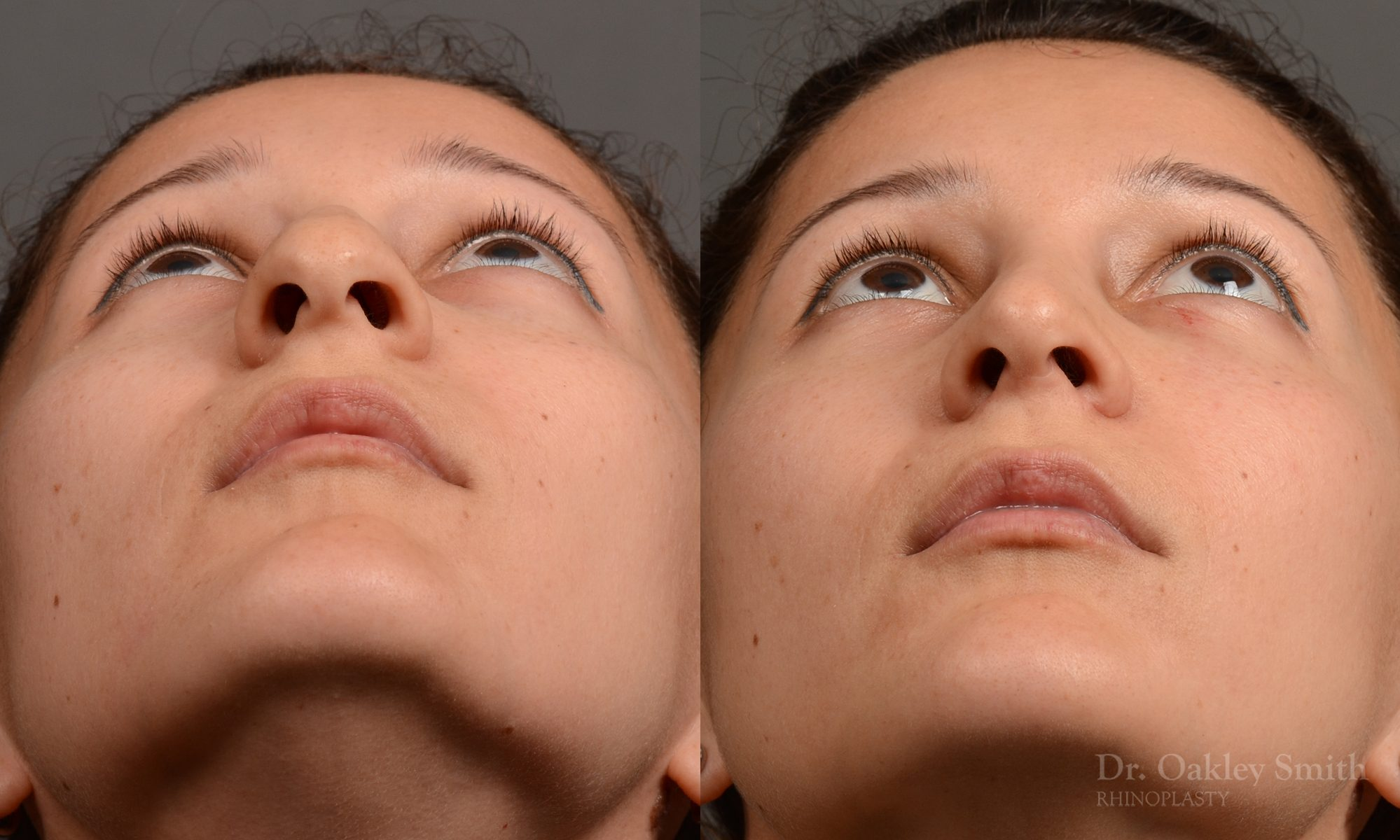 Hump Reduction, Rhinoplasty - Rhinoplasty Before and After Case 332