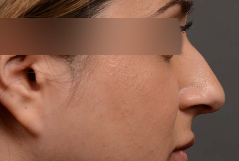 Rhinoplasty Before and After Case 333