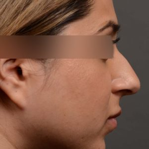 Our young female patient felt her nose was too projected out from her face. This is another way of saying the nose is too large for the face it sits on.