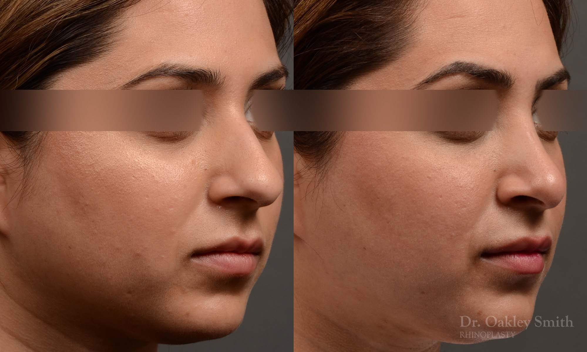 female nose reduction rhinoplasty that reduced the overall size of this womans nose