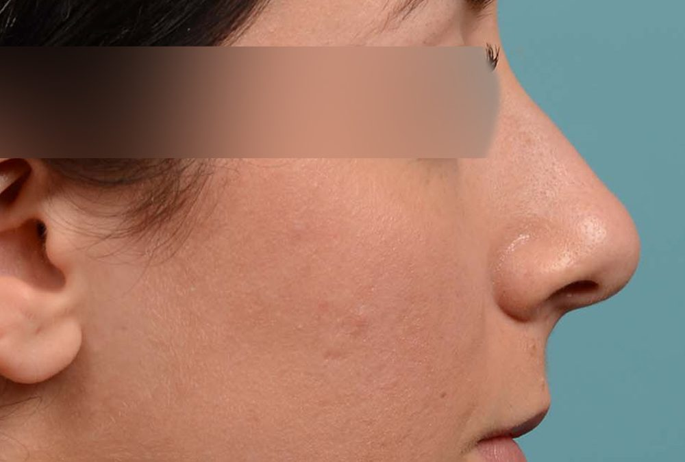 Rhinoplasty Before and After Case 283