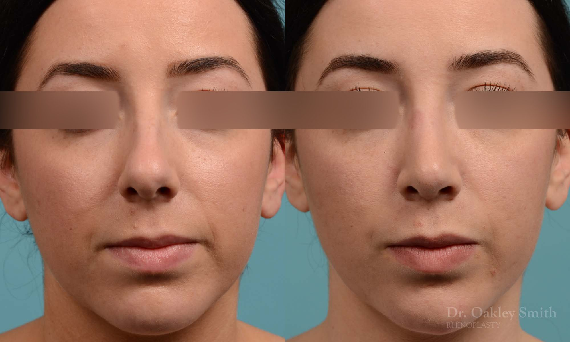 Rhinoplasty to reduce the overall size of her nose