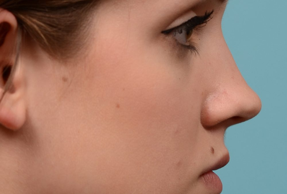Rhinoplasty Before and After Case 293
