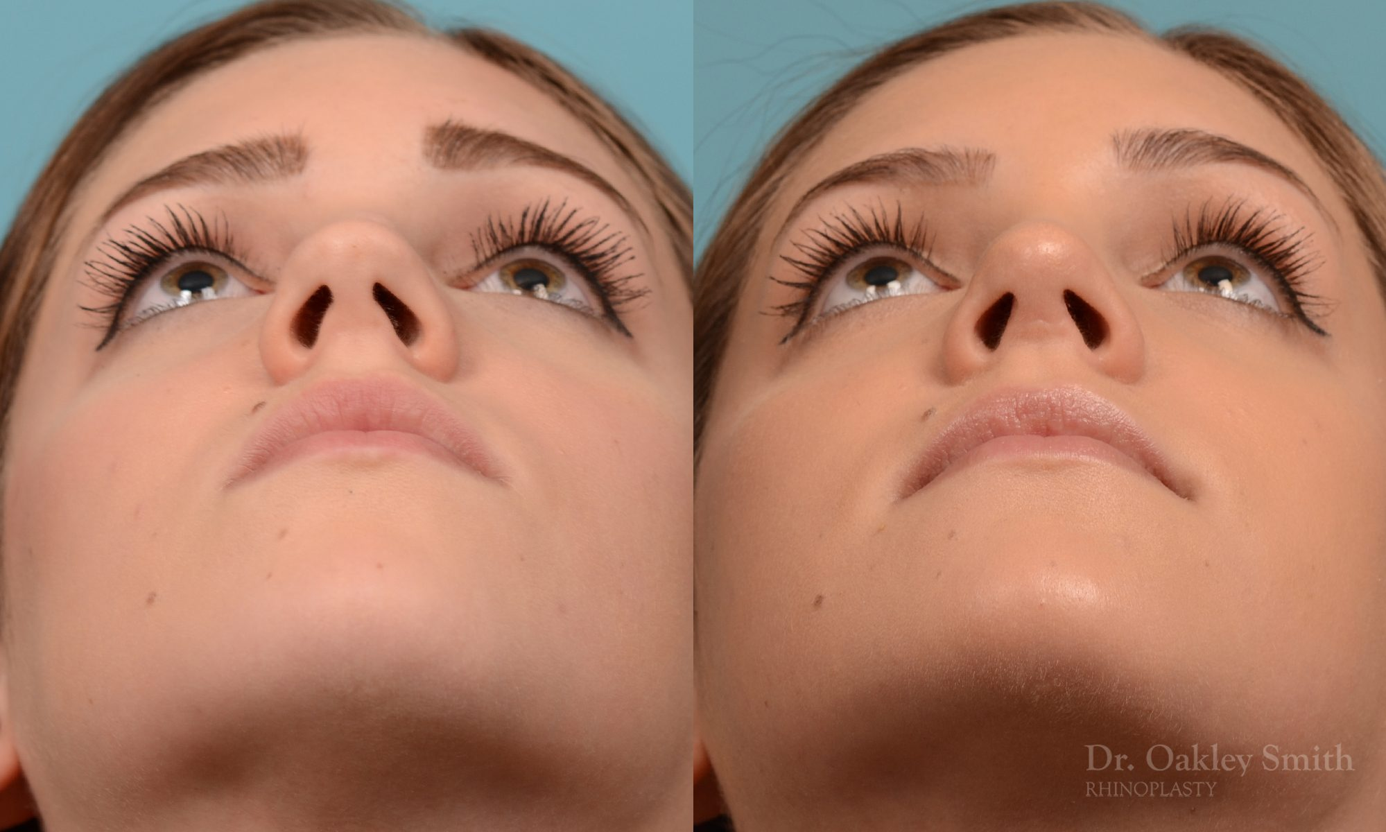Rhinoplasty to smoothen the tip of nose