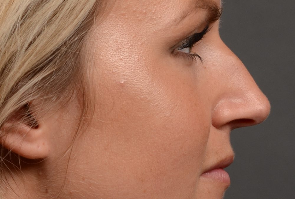 Rhinoplasty Before and After Case 336