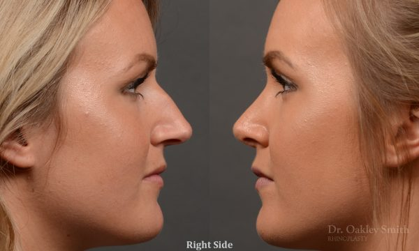 Female nose rhinoplasty to create a more feminine nose