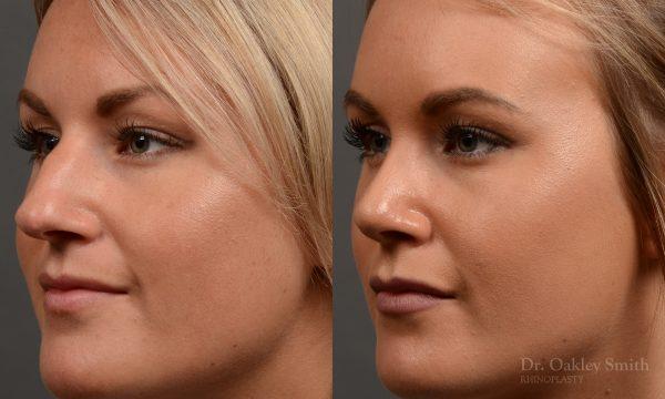 Female nose rhinoplasty to create a more feminine nose