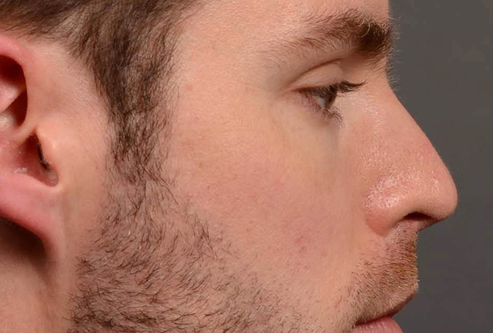 Rhinoplasty Before and After Case 337