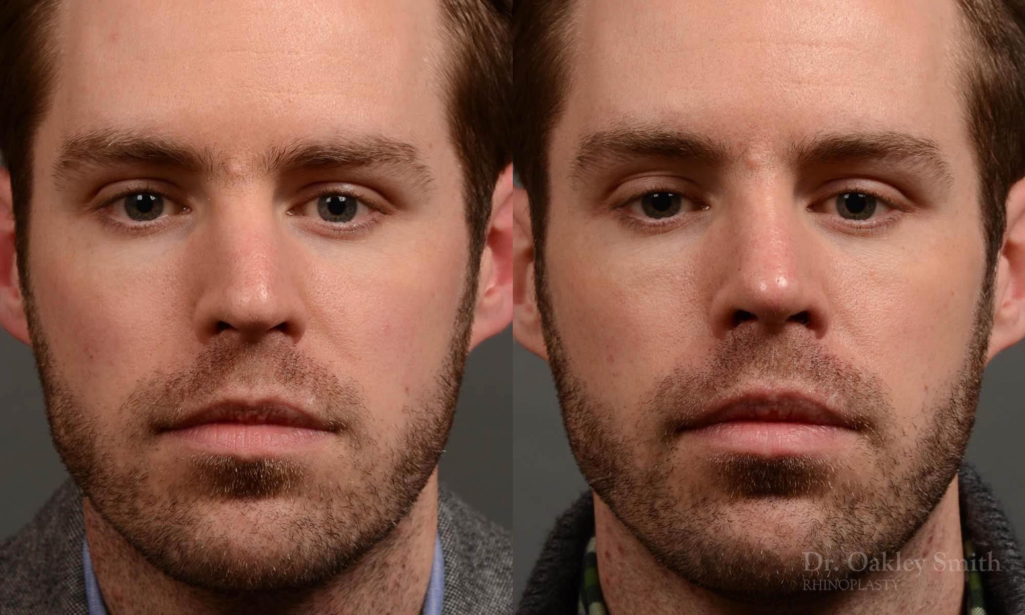 rhinoplasty for straighter nose