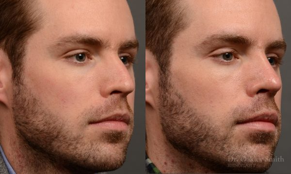 rhinoplasty for straighter nose