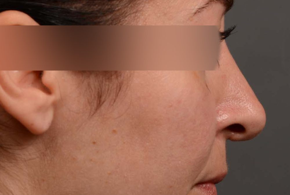 Rhinoplasty Before and After Case 331
