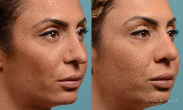 Female rhinoplasty for overall smaller nose