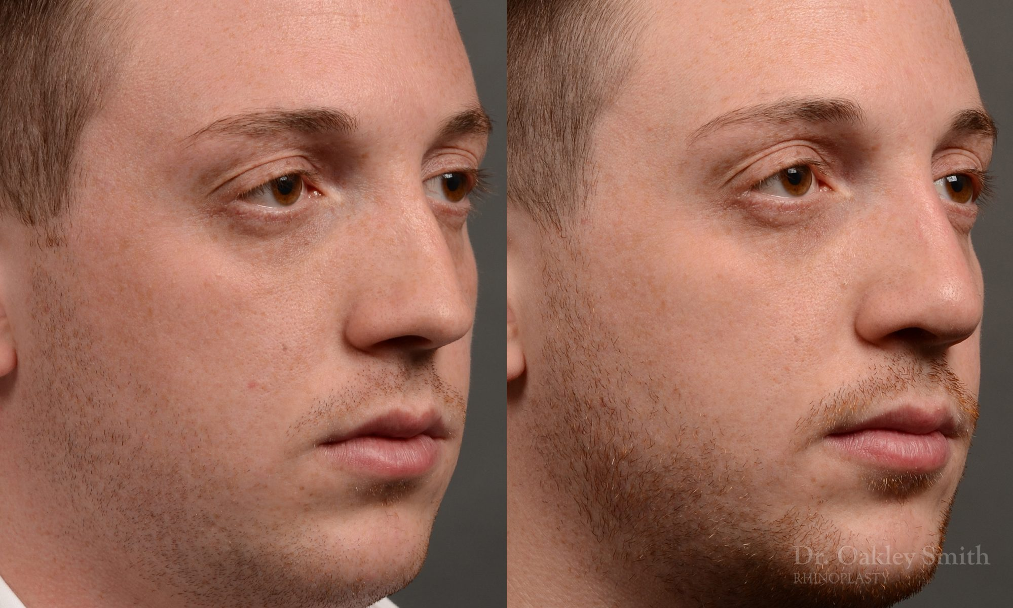 Male rhinoplasty to straigthen nose