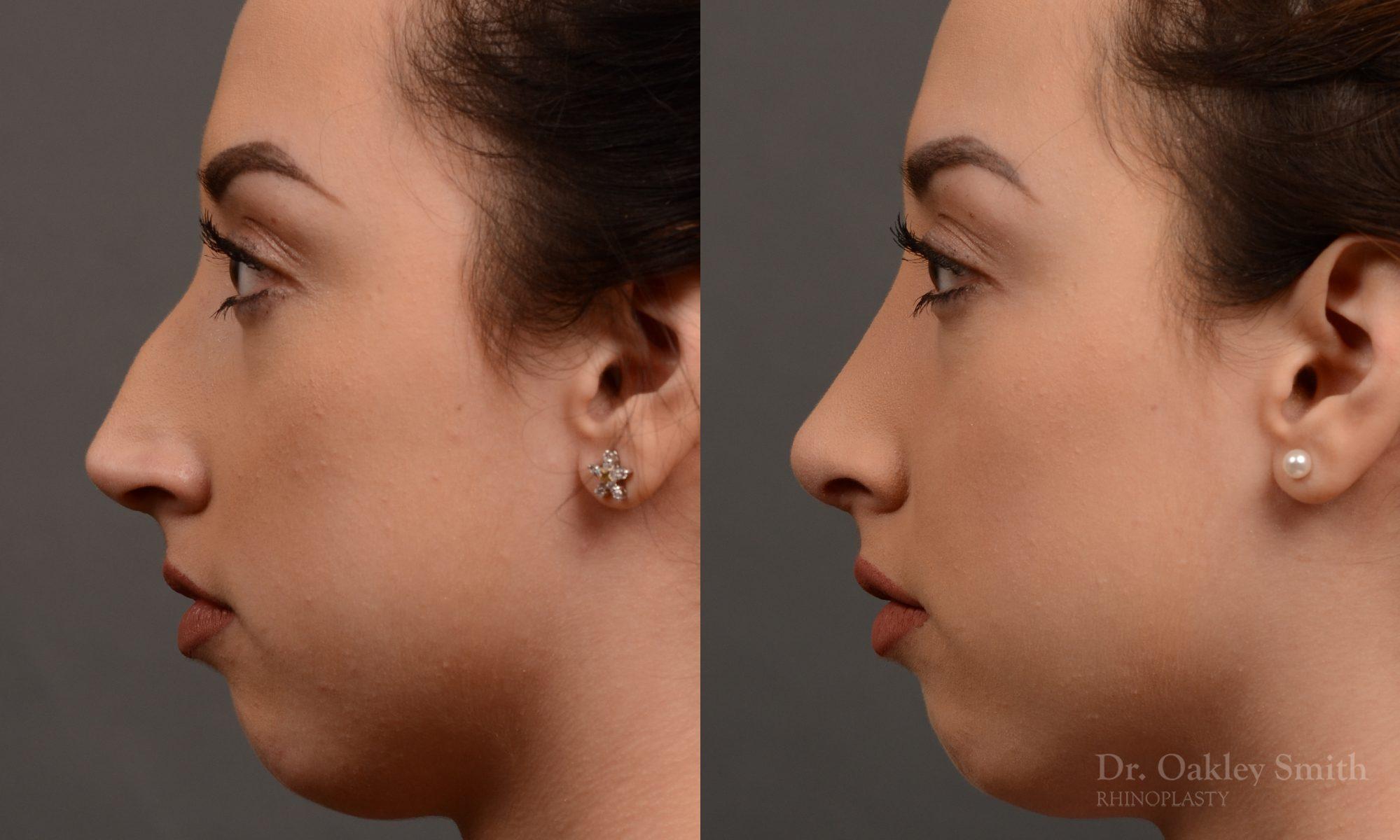 Hump reduction rhinoplasty on a beautiful young women