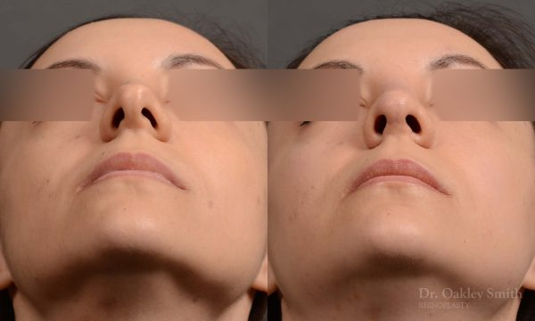 Female rhinoplasty for overall smoother nose