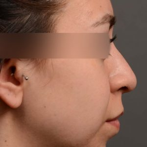 Hump Reduction, Rhinoplasty - Rhinoplasty Before and After Case 342