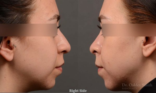 This woman had rhinoplasty to reduce the overall size of her nose. the result is more feminine