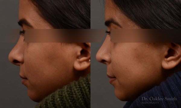Nose reduction rhinoplasty female