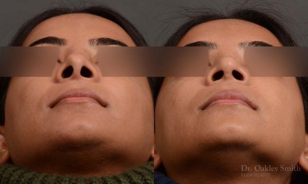 Nose reduction rhinoplasty female