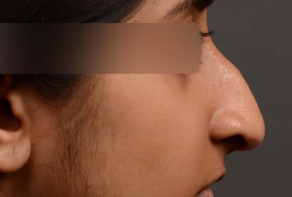 Rhinoplasty Before and After Case 345
