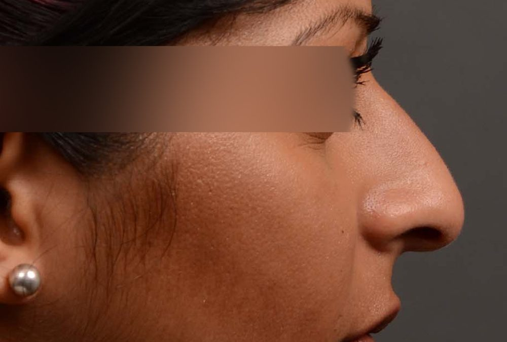 Rhinoplasty Before and After Case 346
