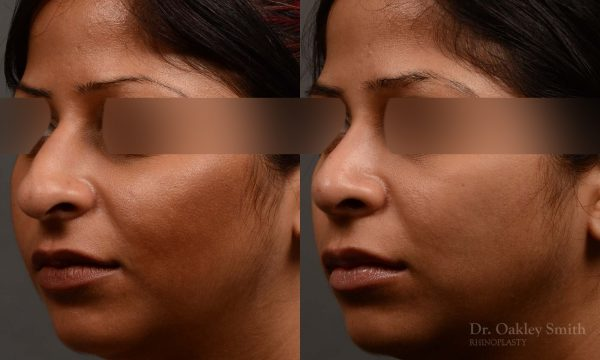 346 rhinoplasty, revision rhinoplasty to reduce the bump on her nose. blurred images depict this woman