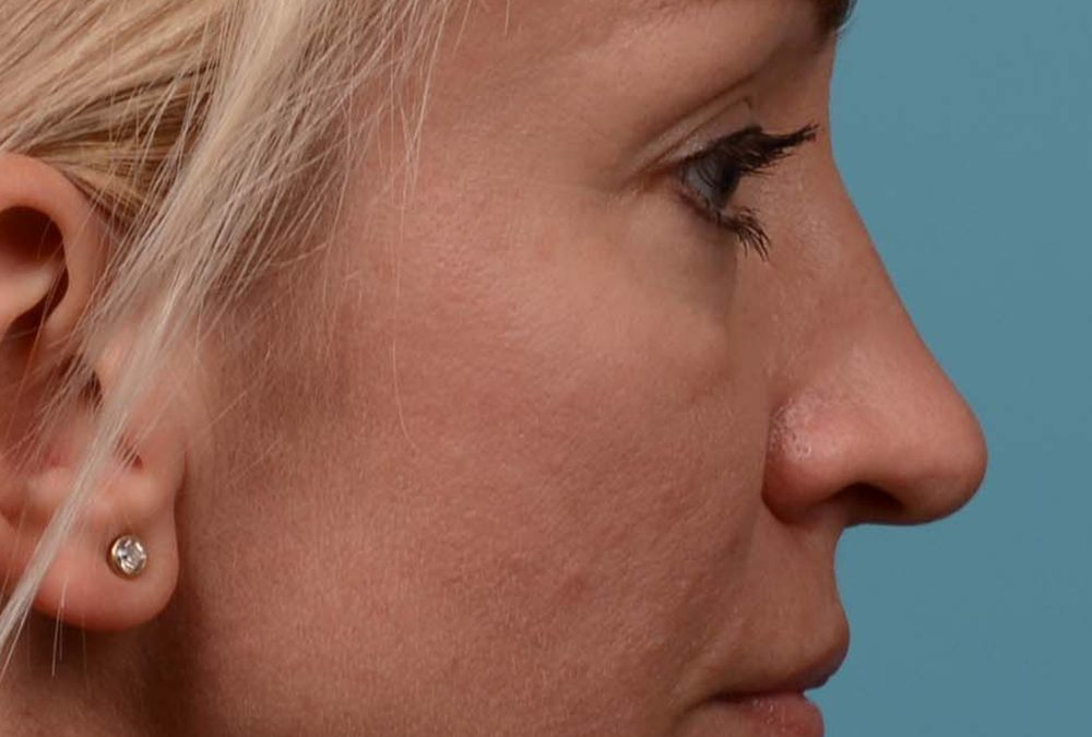 Rhinoplasty Before and After Case 347