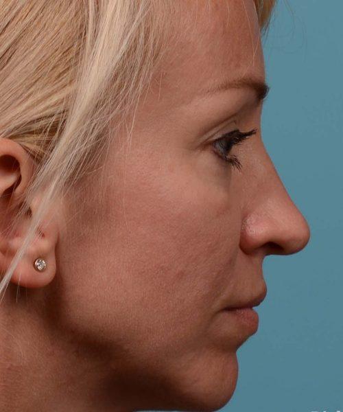 Tip reduction rhinoplasty