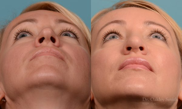Tip reduction rhinoplasty