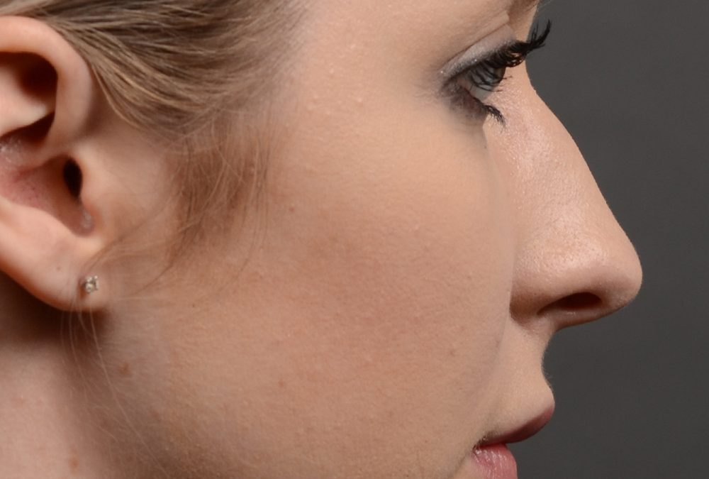Rhinoplasty Before and After Case 348