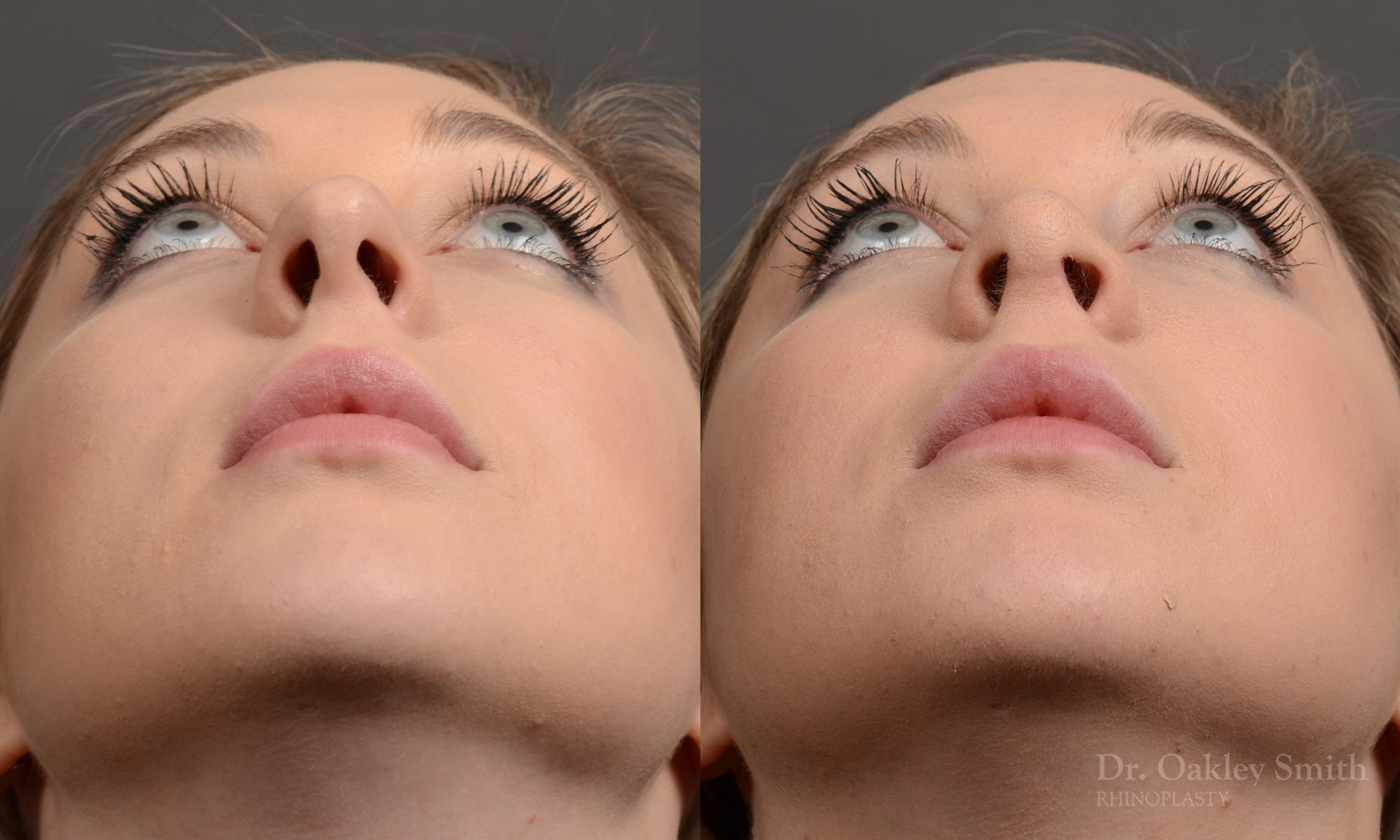 Hump Reduction, Rhinoplasty - Rhinoplasty Before and After Case 348