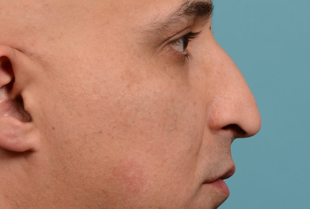 Rhinoplasty Before and After Case 349