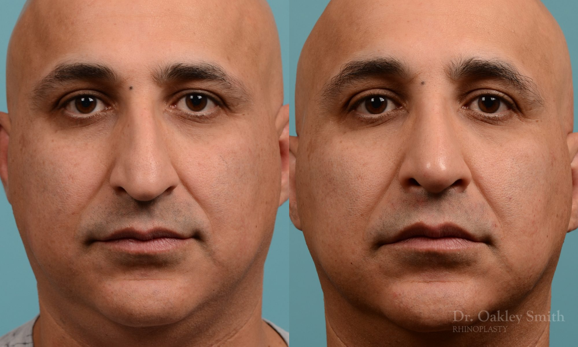 As one of a hand full of surgeons in North America who limits his practice to only Rhinoplasty surgery, it is obvious that he has mastered his art. There is no question why he is one of the busiest cosmetic nose job surgeons in the country.