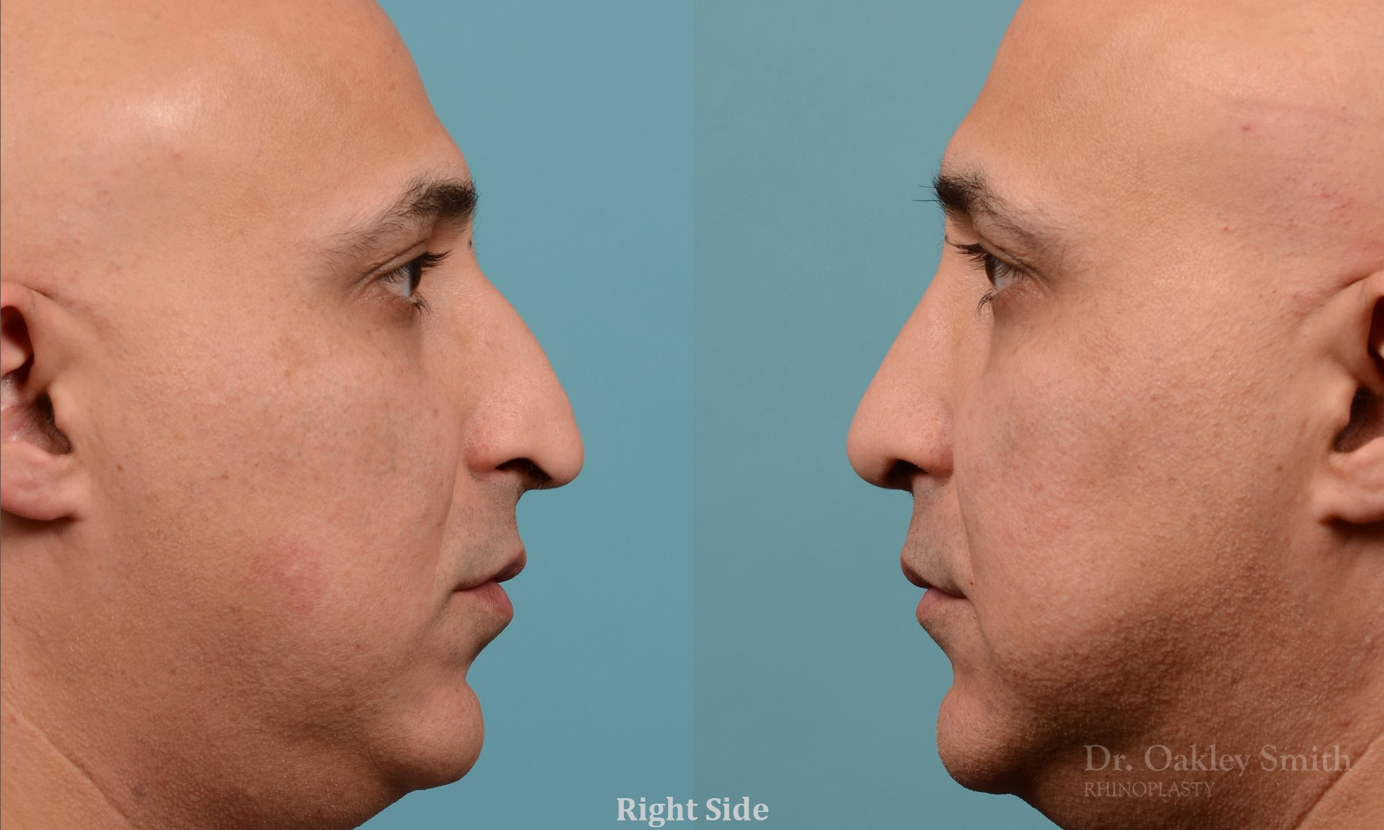 Rhinoplasty nose droop reduction
