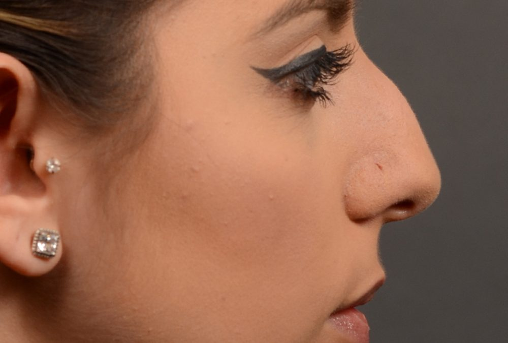 Rhinoplasty Before and After Case 350