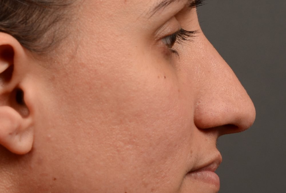 Rhinoplasty Before and After Case 351
