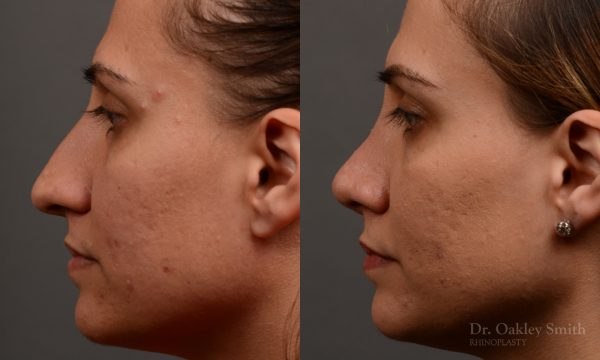 rhinoplasty to create a more feminine nose