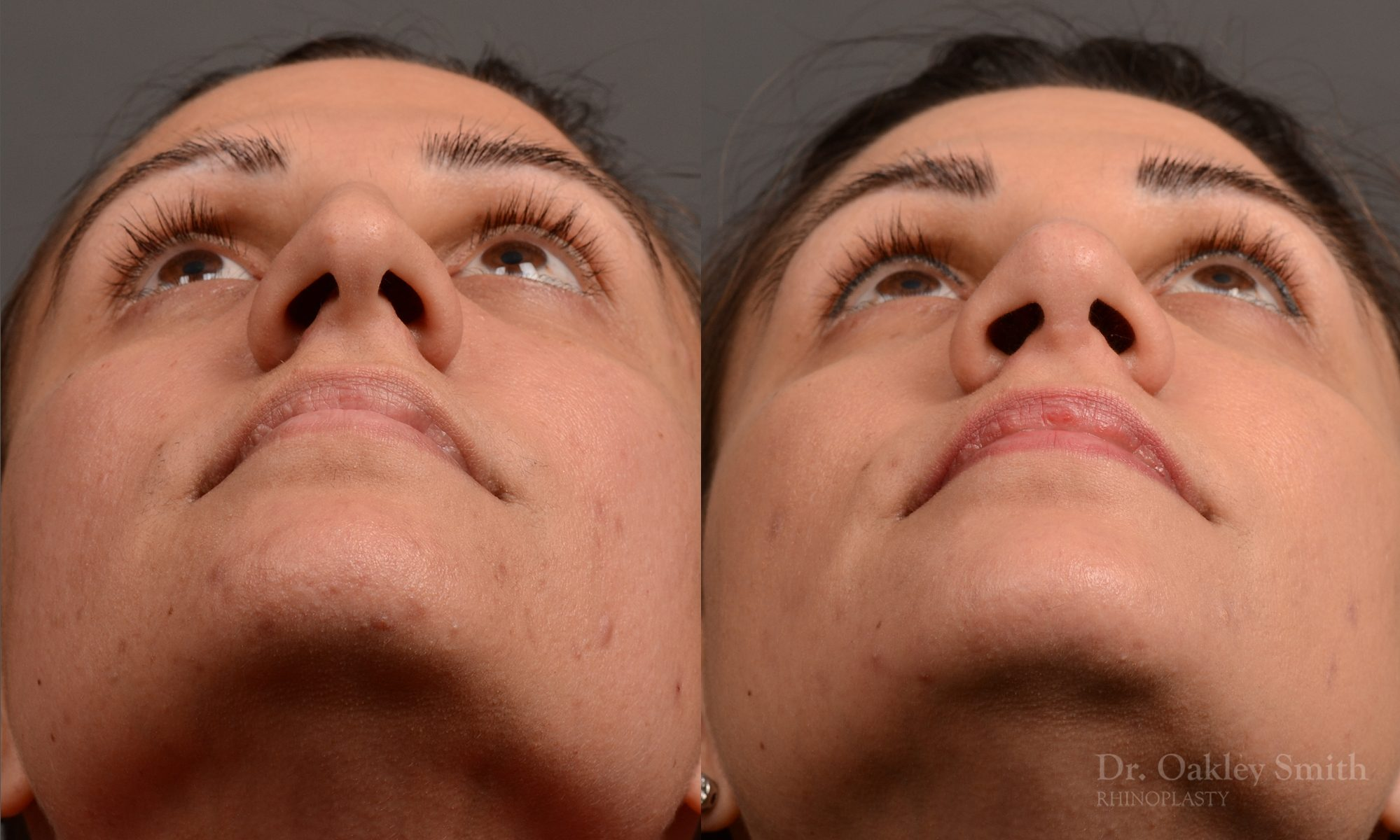 Rhinoplasty - Rhinoplasty Before and After Case 351