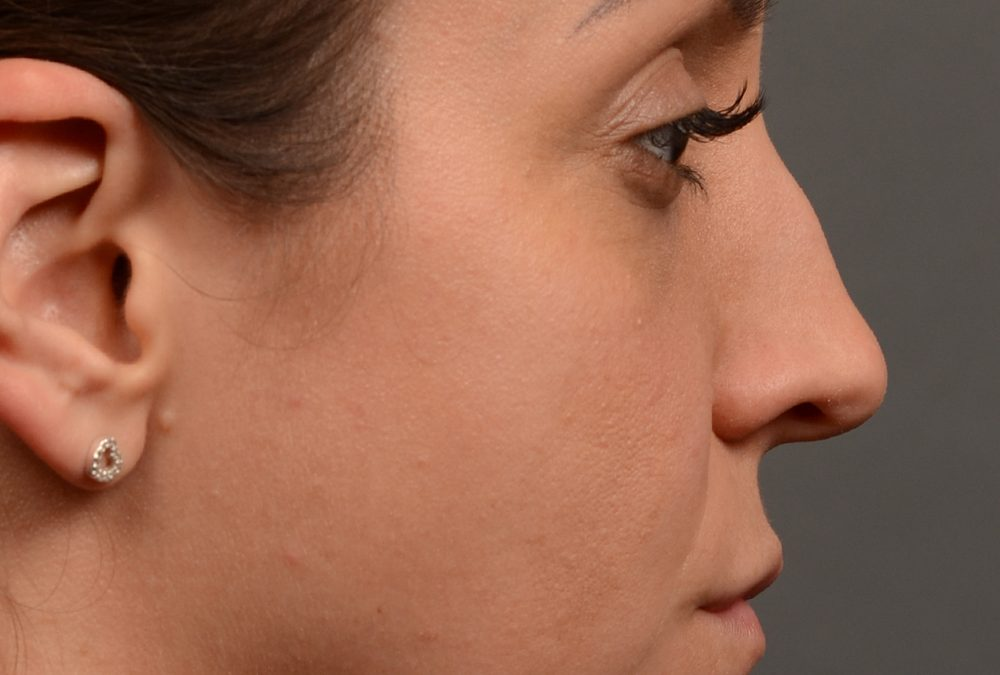 Rhinoplasty Before and After Case 353