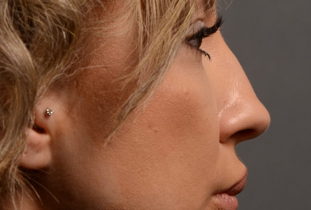 Nose Rhinoplasty Before and After Case 354