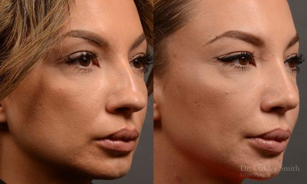 Hump reduction rhinoplasty to create a more feminine nose