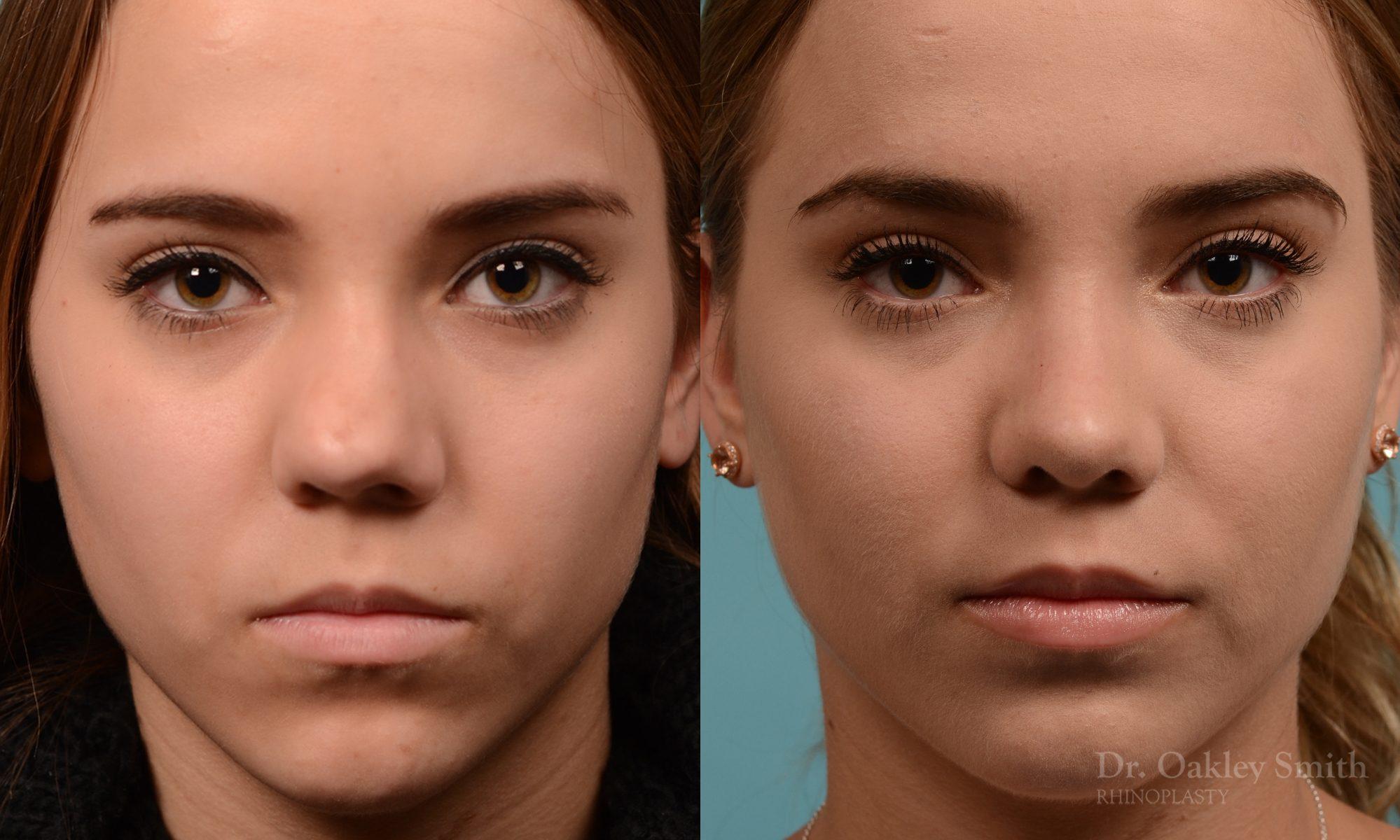Female nose rhinoplasty remove curvature