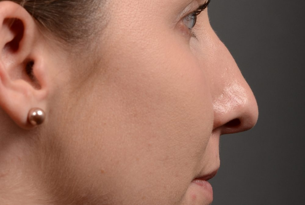 Rhinoplasty Before and After Case 357