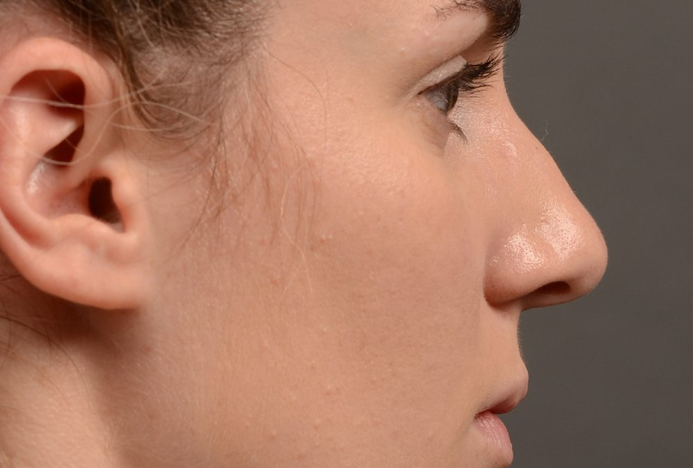 Rhinoplasty Before and After Case 358