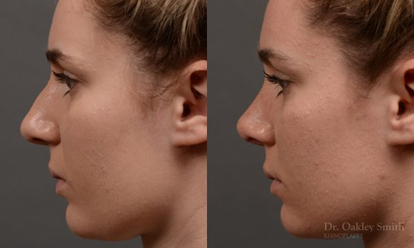 Hump reduction rhinoplasty to create a more feminine nose