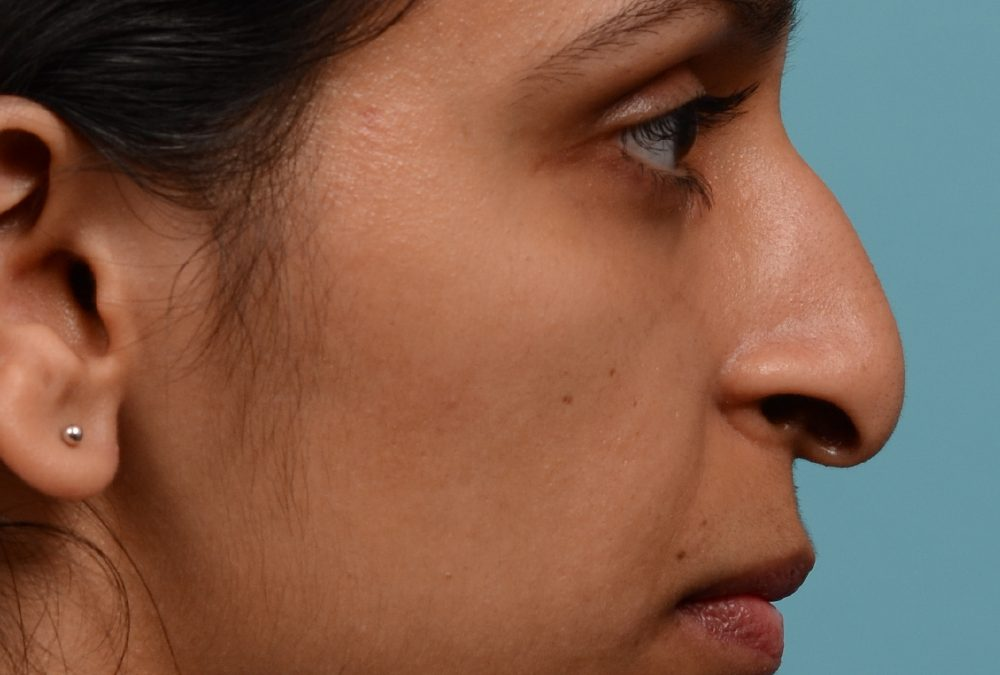 Rhinoplasty Before and After Case 360